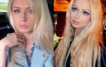 Human-Barbie-Before-and-After-Plastic-Surgery1